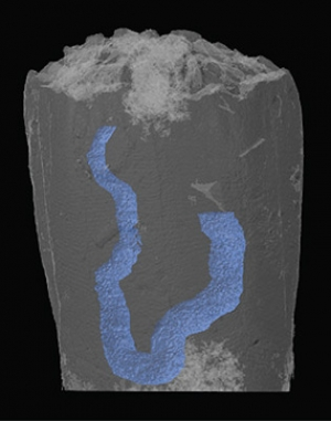 3-D reconstruction of a blastoid fossil shows its gut highlighted in blue